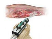 Регенеративная медицина в действии