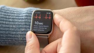 Приложение «ЭКГ» станет доступно на Apple Watch в России